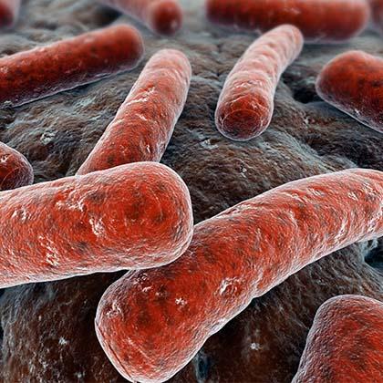 tuberculosis_14313982
